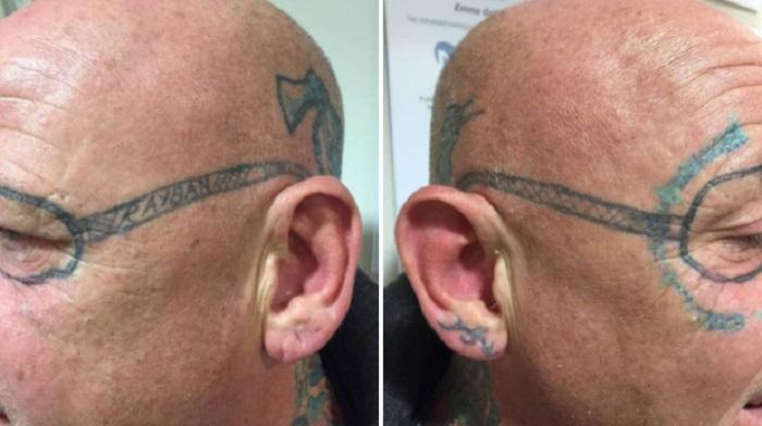 tatuiruote-ant-veido2